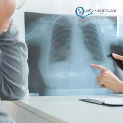 肺癌篩查計劃 (CS Code: JE07)